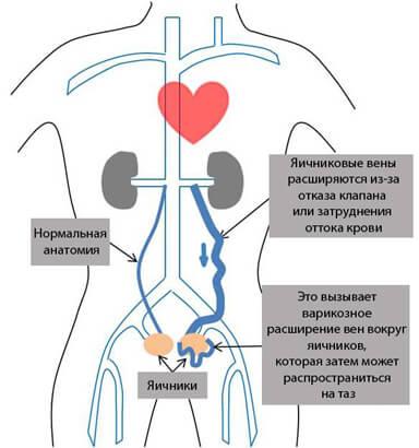 Синдром хронических тазовых болей